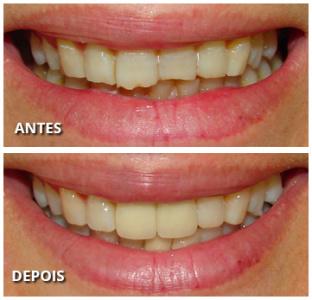 Solução para os dentes desgastados!