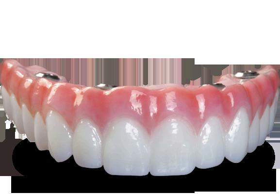 bruxzir-full-arch-implant-prosthesisn